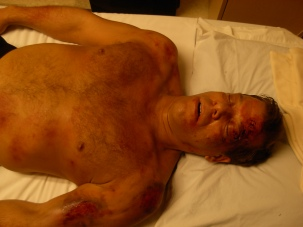 Car Crash Victim with internal bleeding. Model: Eric Newsome