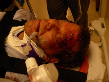 Car Crash Victim with internal bleeding. Model: Eric Newsome